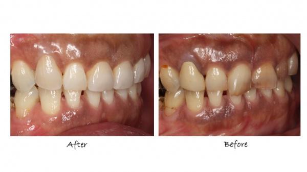 セラミック冠による審美歯科 豊中