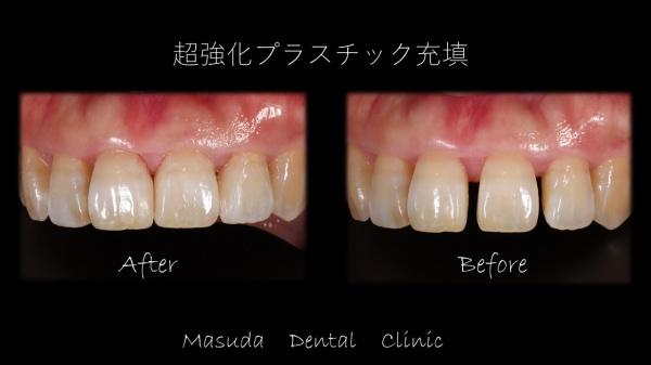 前歯の隙間の閉鎖 豊中市の歯医者