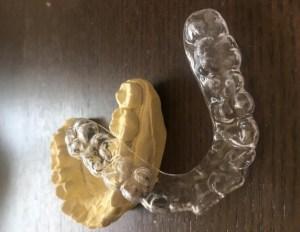 ナイトガード 歯ぎしり対策マウスピース