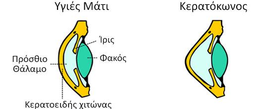 Στον κερατόκωνο το κανονικό σχήμα του κερατοειδής αρχίζει να λεπταίνει κεντρικά ή παρακεντρικά.