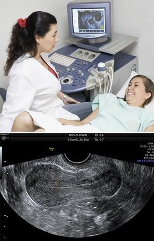 transvaginal