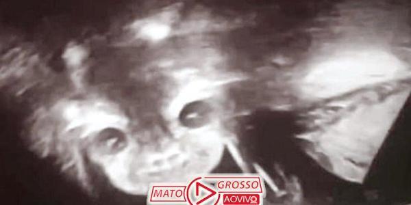 """Mãe fica assustada ao ver """"bebê demônio"""" sorrindo em ultrassom 36"""
