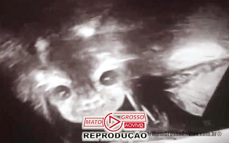 """Apesar do susto, a médica assegurou que esse rosto """"demoníaco"""" é perfeitamente normal e que os pais não precisavam se preocupar."""