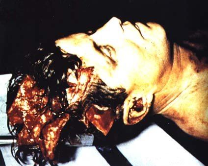 Cadaver con un disparo en la cabeza