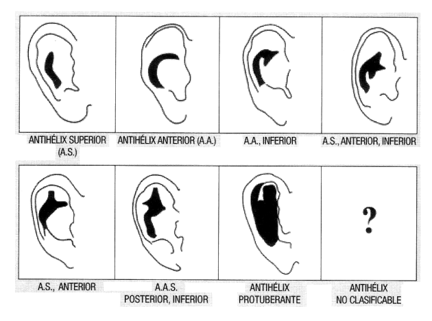 Clasificación de impresiones de Antehélix del profesor George Maat