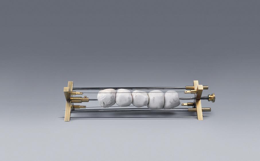 Sigurd Bronger. Brosje. Wearable Device for Gallstones. Gullplettert messing, stål og gallsteiner. Eget verksted. Utført i 1998. (Foto: Sigurd Bronger)