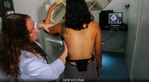 A 40% se reduce la mortalidad en mujeres desde los 50 años con una mamografía cada dos años