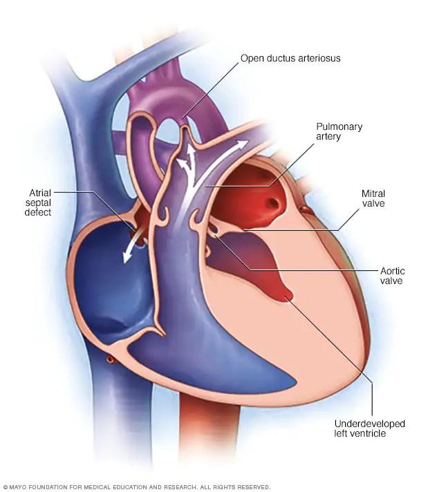 Síndrome de hipoplasia del ventrículo izquierdo