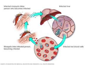 Malaria  Symptoms and causes  Mayo Clinic