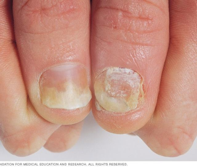 Psoriasis On The Nails