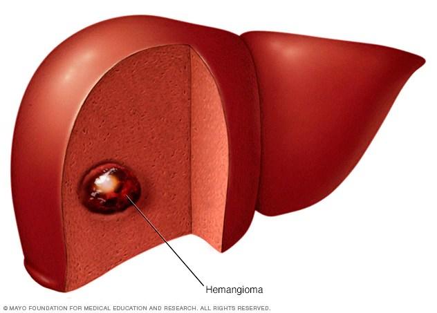 ورم وعائي في الكبد الأعراض والأسباب Mayo Clinic مايو كلينك