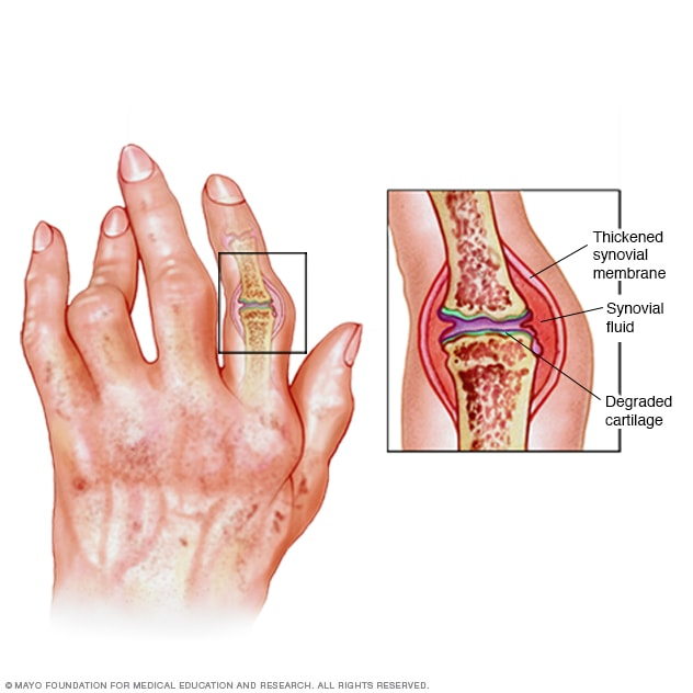 Illustration showing inflammation of rheumatoid arthritis