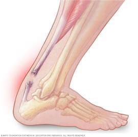 Achilles tendon rupture - Symptoms and causes - Mayo Clinic