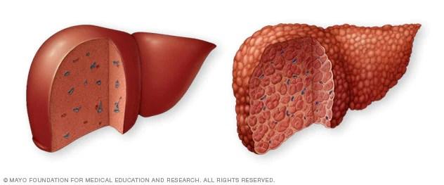 تليف الكبد الأعراض والأسباب Mayo Clinic مايو كلينك