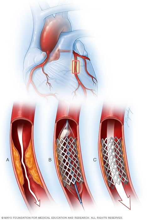 Balão para ampliar uma artéria coronária
