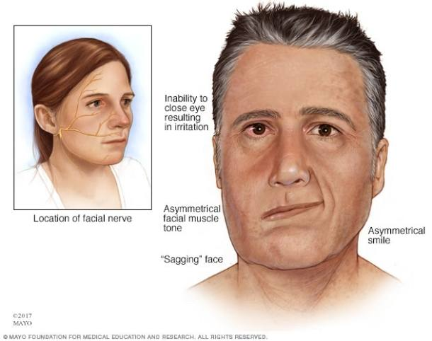 نتيجة بحث الصور عن الشلل المفاجئ جانب من الوجه