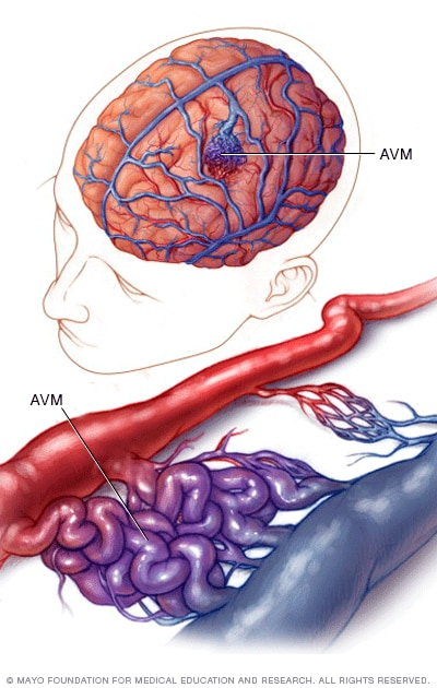 Image showing normal and abnormal blood vessels