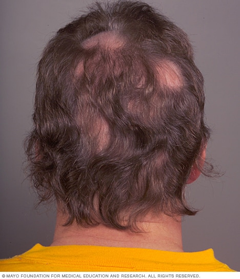Patchy Hair Loss Alopecia Areata Mayo Clinic