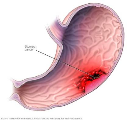 Image result for stomach cancer