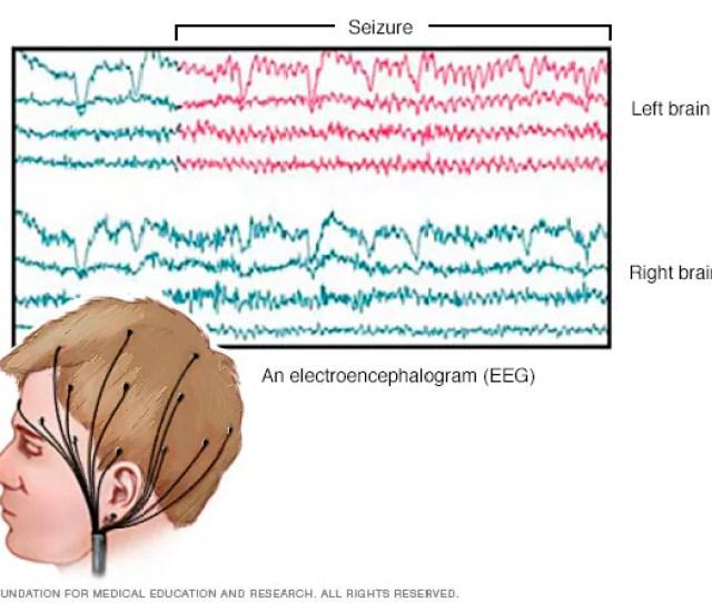 Eeg Brain Activity