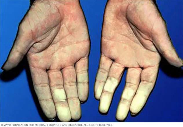 مرض رينود الأعراض والأسباب Mayo Clinic مايو كلينك