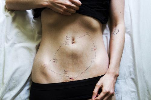 Le cicatrici dell'endometriosi, gli scatti di Georgie Wileman