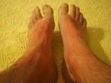 skin allergies 6t52