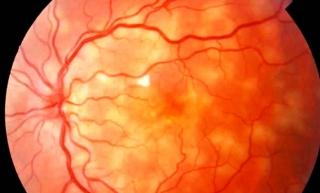 Uveitis Department Of Ophthalmology McGill University