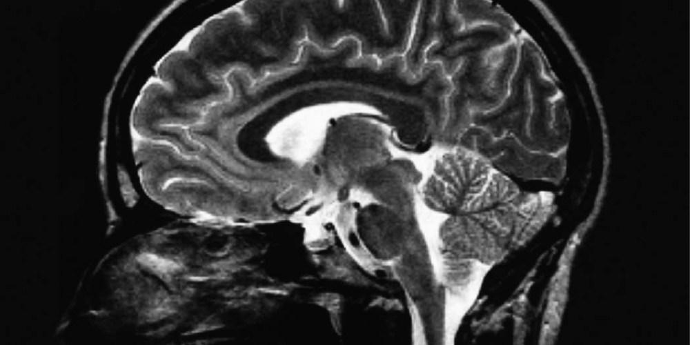 Online brain games may prevent cognitive degeneration. (mindblogs.smartandstrong.com)
