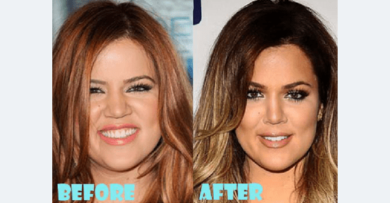 Before-After-Cosmetic-Procedure-Kim-Kardashian