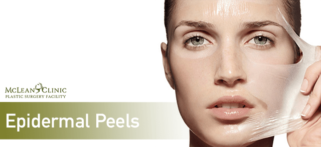 Epidermal Peels