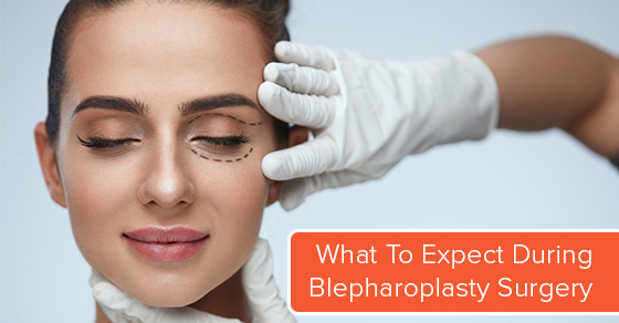 Blepharoplasty Surgery Process