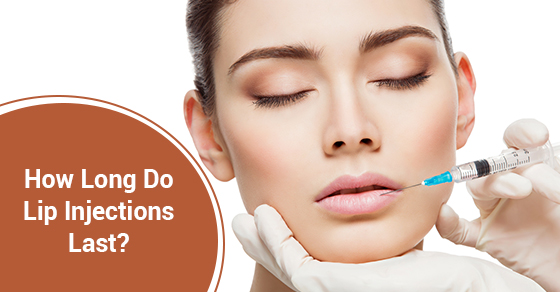 How Long Do Lip Injections Last? | McLean Clinic