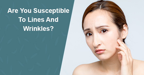 Are You Susceptible To Lines And Wrinkles?