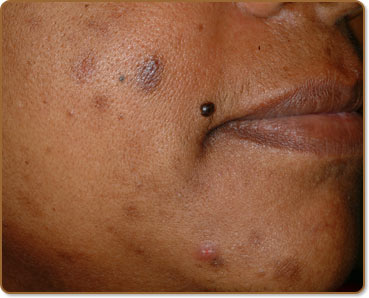 Post Inflammatory Hyperpigmentation Causes And Treatments