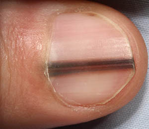 Is Black Streaks In Your Fingernails A Cause For Concern