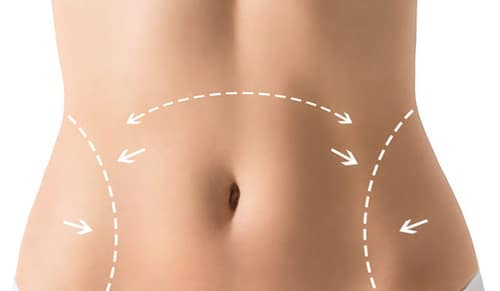 Sculpsure Fat Removal Video Best Cosmetic Surgeons Baltimore