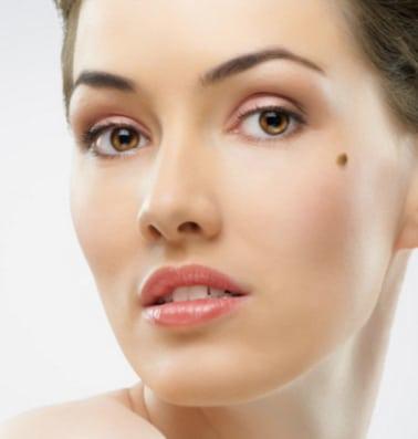 Remove Moles - Best Cosmetic Surgeons Baltimore