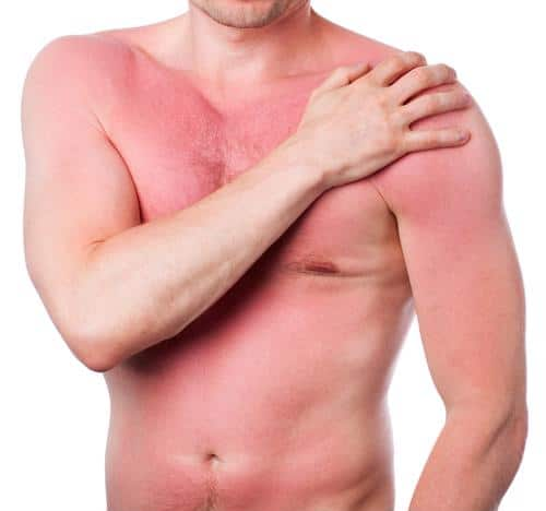 If you're currently dealing with sunburn or want to prepare for the future, consider these tips for treating the burn and discomfort.