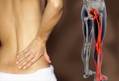 Risultati immagini per cura del bacino sintomi