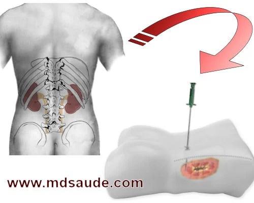 Biópsia renal