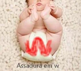 Assadura do bebê