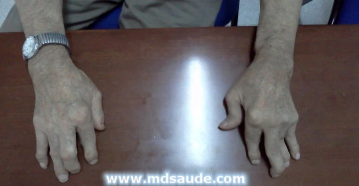 Artrite reumatoide mãos