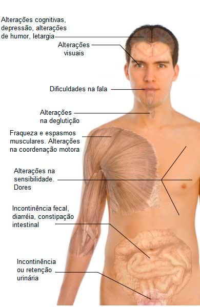 Sintomas da esclerose múltipla