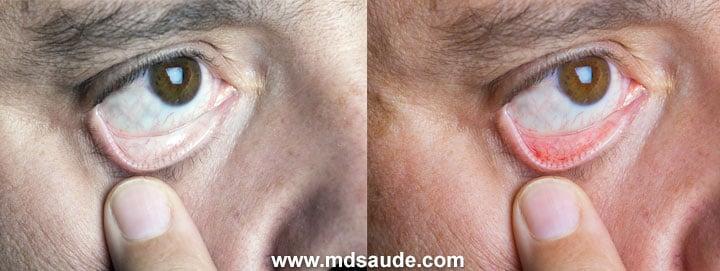Conjuntiva pálida na anemia