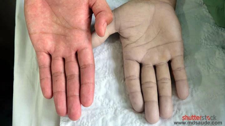 Palidez da pele na anemia