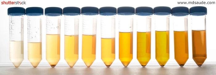 Cores normais da urina