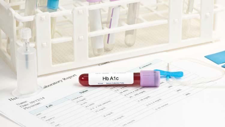 HbA1c - hemoglobina glicosilada