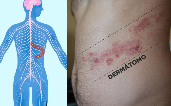 Dermátomo - herpes zoster