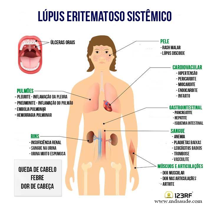Sintoma do lúpus